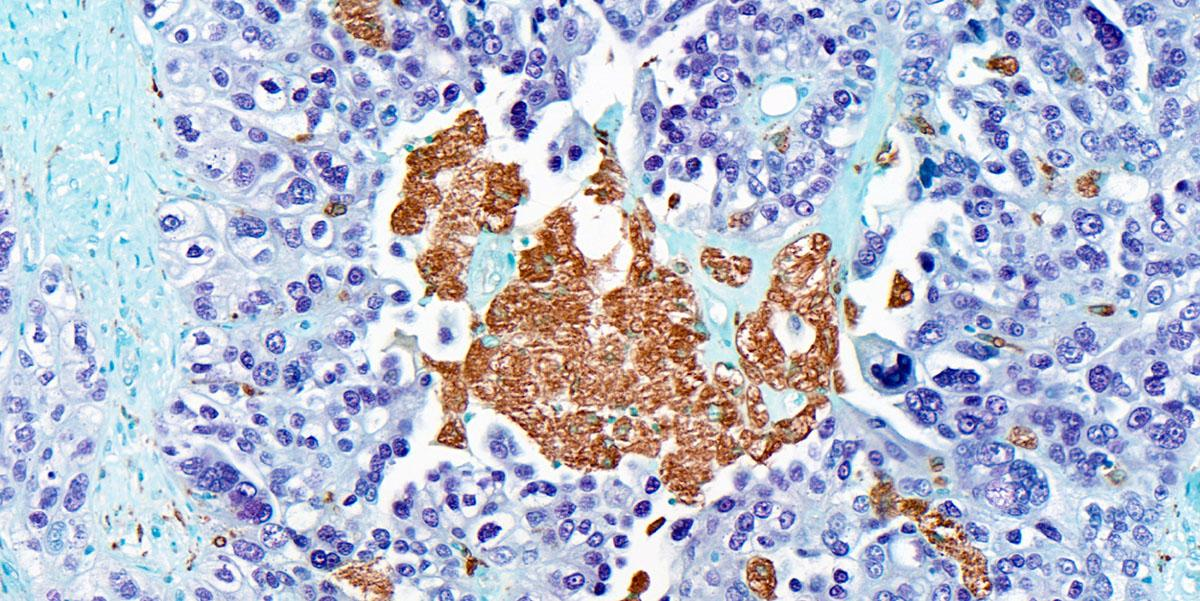 CD68+ tumour associated macrophages (brown) within a human high-grade serous ovarian cancer omental metastasis
