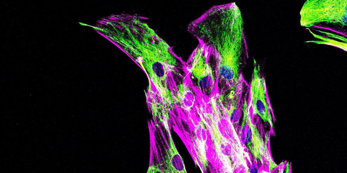 Immunofluorescence staining of cancer-associated fibroblasts from a human pancreatic cancer