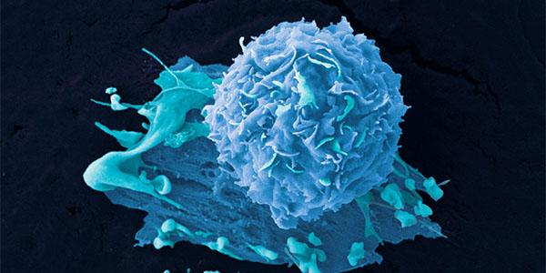 Breast cancer cells. Credit: Anne Weston, Francis Crick Institute. CC BY-NC