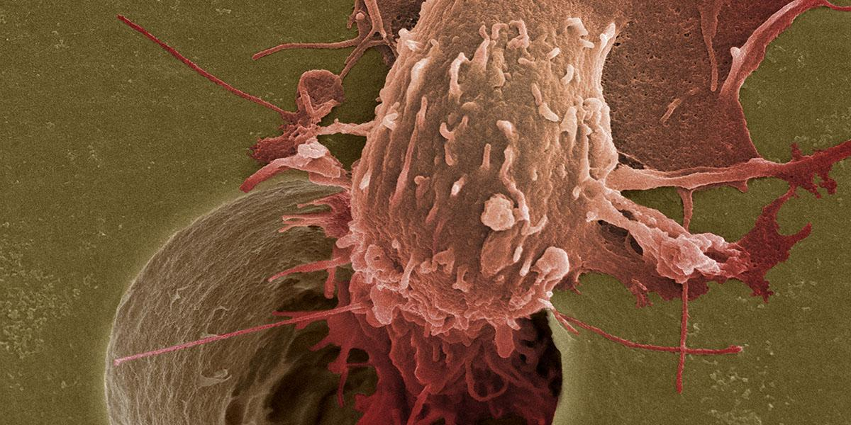 SEM image of a cancer cell migrating down through a pore in a membrane