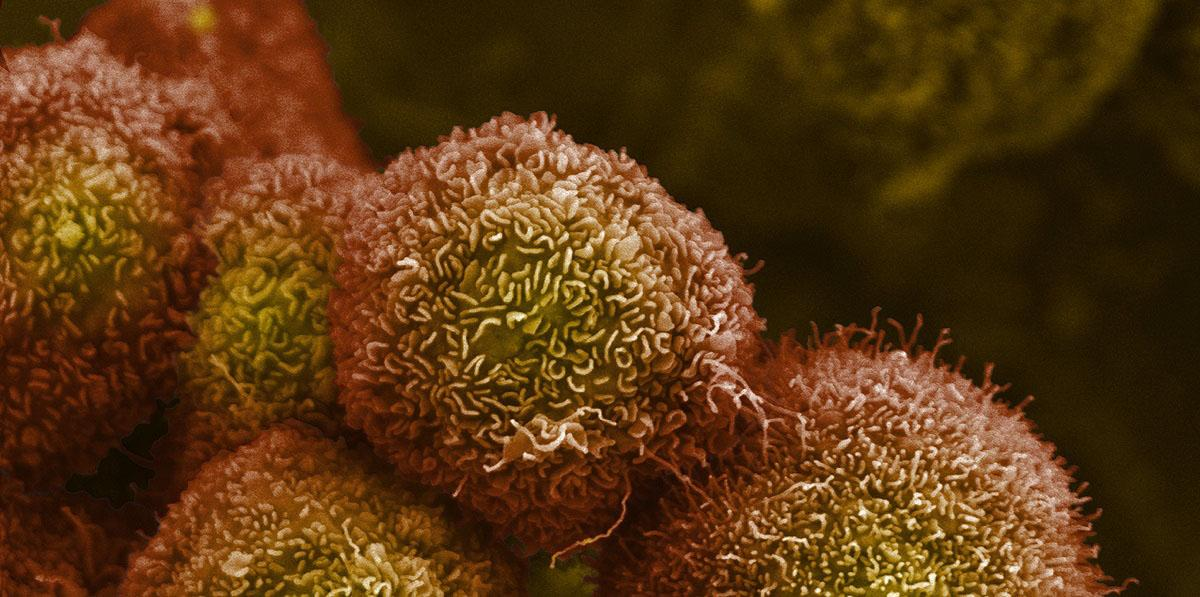 Pancreatic cancer cells. Credit: Anne Weston, Francis Crick Institute. CC BY-NC