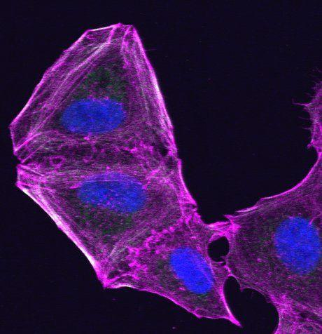Researchers have found that melanoma cells fight anti-cancer drugs by changing their internal skeleton (cytoskeleton) - opening up a new therapeutic route for combatting skin and other cancers that develop resistance to treatment. This image shows a drug-resistant melanoma cell that has altered its cytoskeleton.