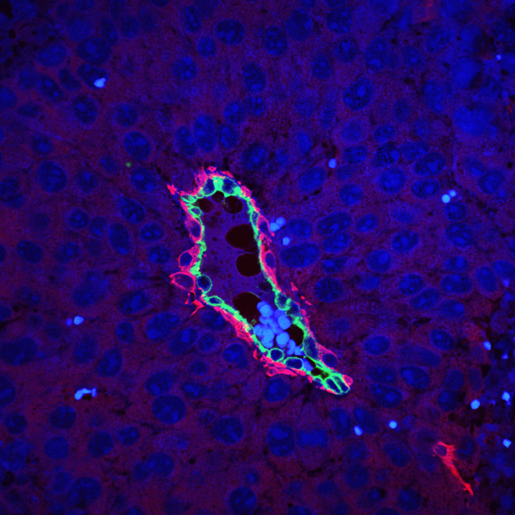 Pericytes: Novel insights into the control of cancer growth. A β3-integrin-negative tumour blood vessel. Mural cells are labelled (red), β3-integrin found only in endothelial cells (green) and nuclei (blue).