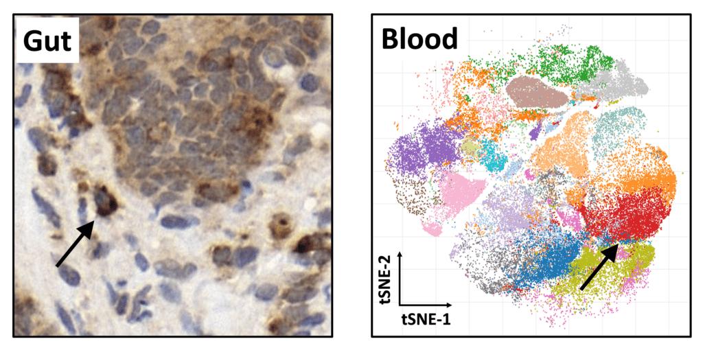 Novel insights into graft-versus-host disease.