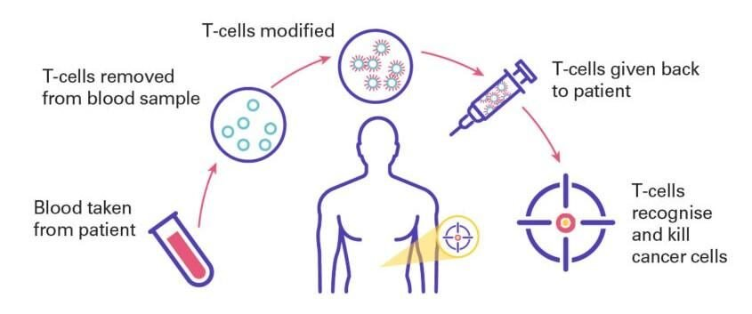 CAR T cell therapy for pancreatic cancer.