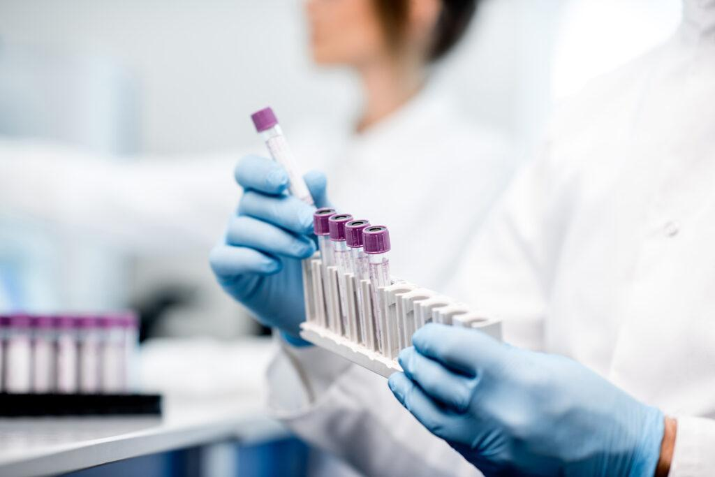 Study to investigate how AI could aid early detection of pancreatic cancer