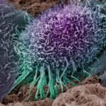 Credit: Anne Weston, LRI, CRUK and John Marshall, Tumour Biology Lab